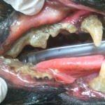 歯石重度術前